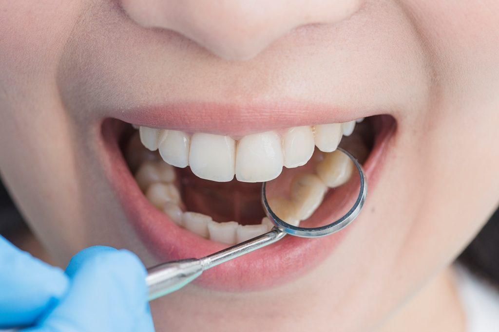 Ошибки стоматологов: ответственность и наказание